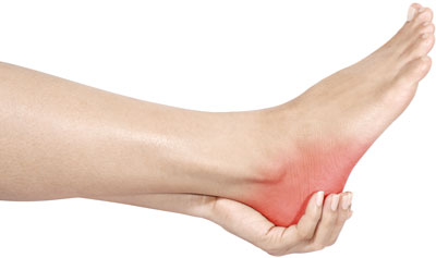 Acupuncture Relieves Heel Pain and Plantar Fasciitis - WV ...